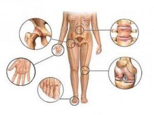 Не специфические симптомы и лечение туберкулеза костей