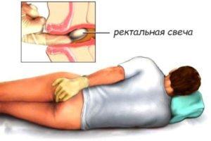 Нестероидное медикаментозное средство для уколов Диклонат П