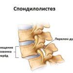 Общие сведения и методики лечения шейного лордоза