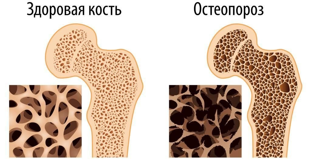 Опасность развития остеопороза у детей и способы его лечения