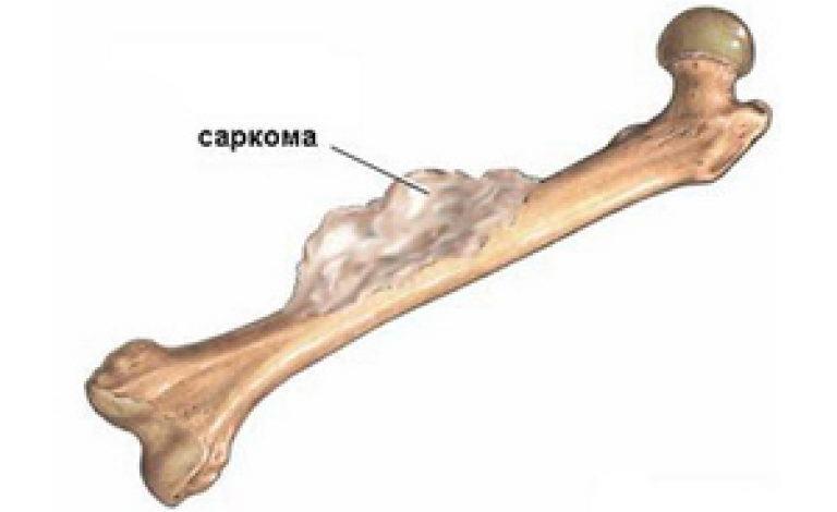 Опасность развития саркомы кости и описание лечения