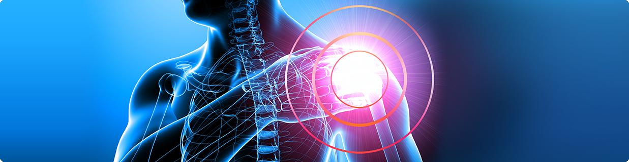 Описание адгезивного капсулита плеча и методы лечения
