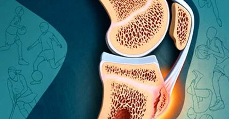 Описание болезни Осгуда-Шлаттера и варианты лечения