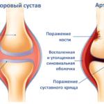 Описание действия противовоспалительного препарата Флурбипрофен
