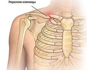 Ортопедические приспособления для фиксации ключицы кольца Дельбе