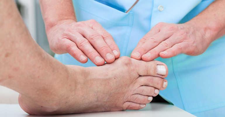 Подагра на большом пальце ноги лечение