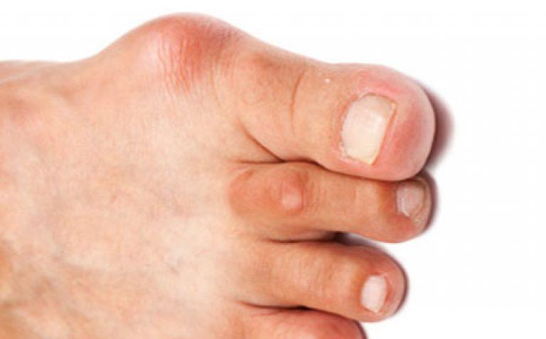 Основные методы лечения подагры на большом пальце ноги