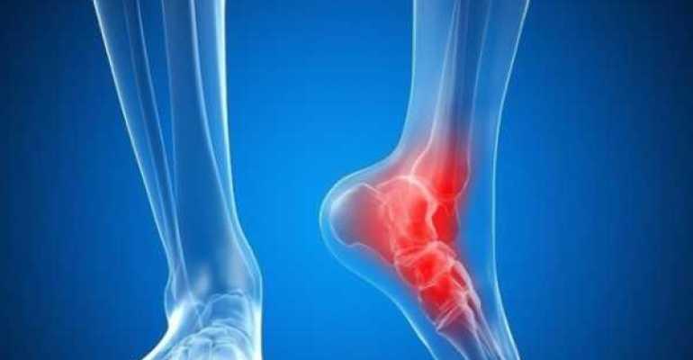 Основные причины хруста голеностопного сустава и методы терапии