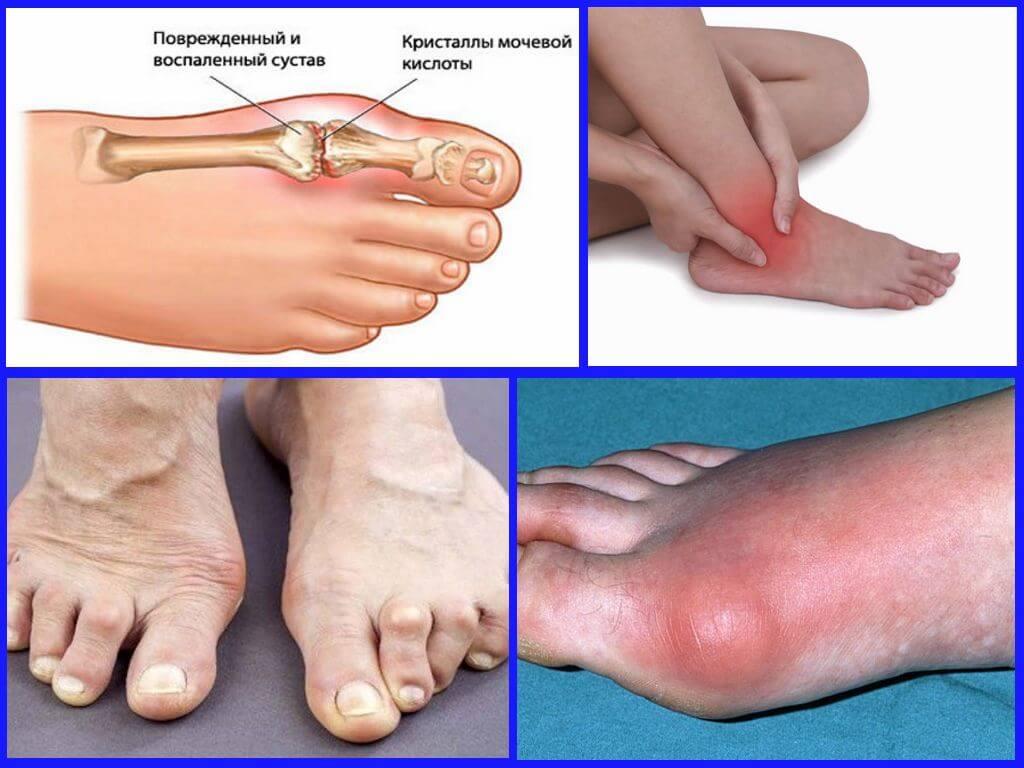 Основные симптомы артрита пальцев ног, а также методы эффективного лечения