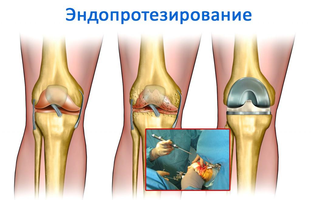 Особенности лечения анкилоза и эффективные методы терапии