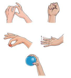 Особенности лечения остеоартроза кистей рук
