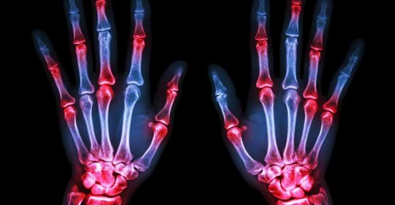Перелом ладьевидной кости руки, лечение