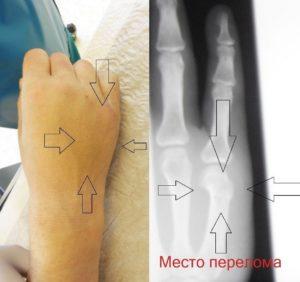Особенности лечения перелома ладьевидной кости