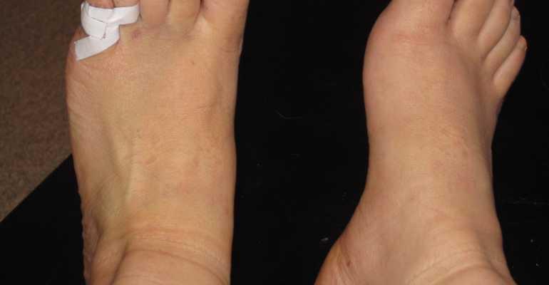 Особенности лечения перелома мизинца на ноге