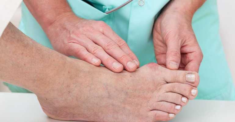 Как лечить подагру в период обострения
