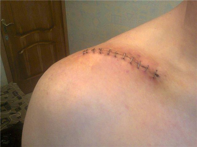 Особенности перелома плечевой кости и сложности в лечении