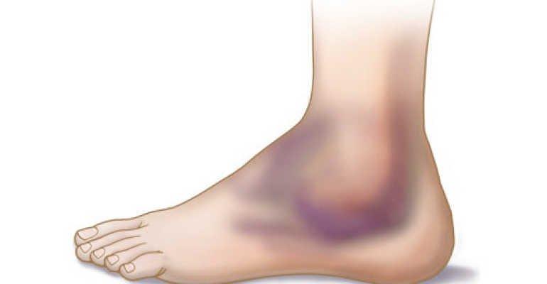 Особенности терапии при ушибе голеностопного сустава