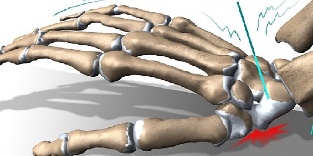 Особенности выполнения ЛФК при переломе лучевой кости
