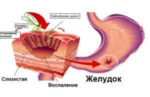 Перечень нюансов относительно препарата Дексалгин