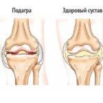 Перечень препаратов для уколов в коленный сустав при артрозе