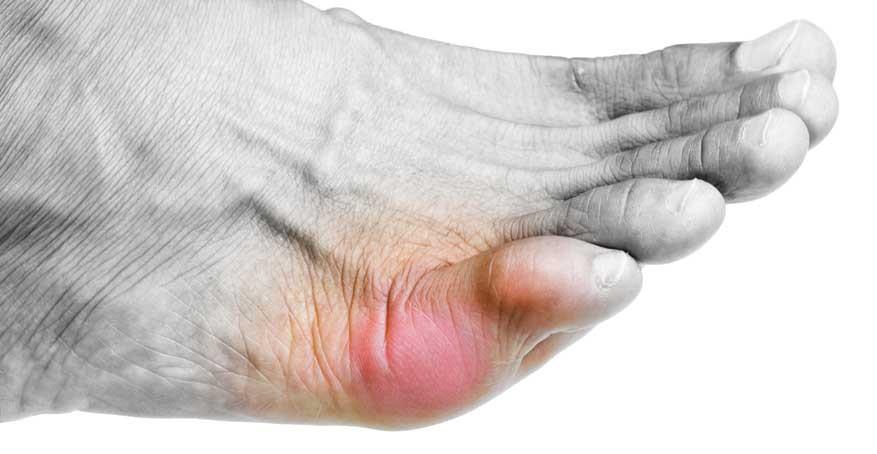 По каким признакам можно отличить перелом мизинца на ноге от ушиба
