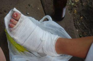 Почему предпочтительнее использовать при переломе лангетку на ногу