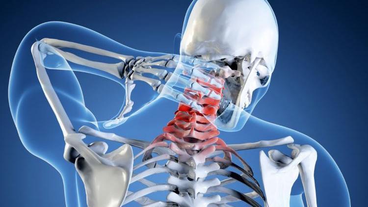 Почему возникает полисегментарный остеохондроз и как его вылечить?