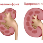Препарат для проведения химиотерапии Циклофосфамид