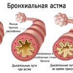 Препарат от большого количества патологий Вольтарен свечи