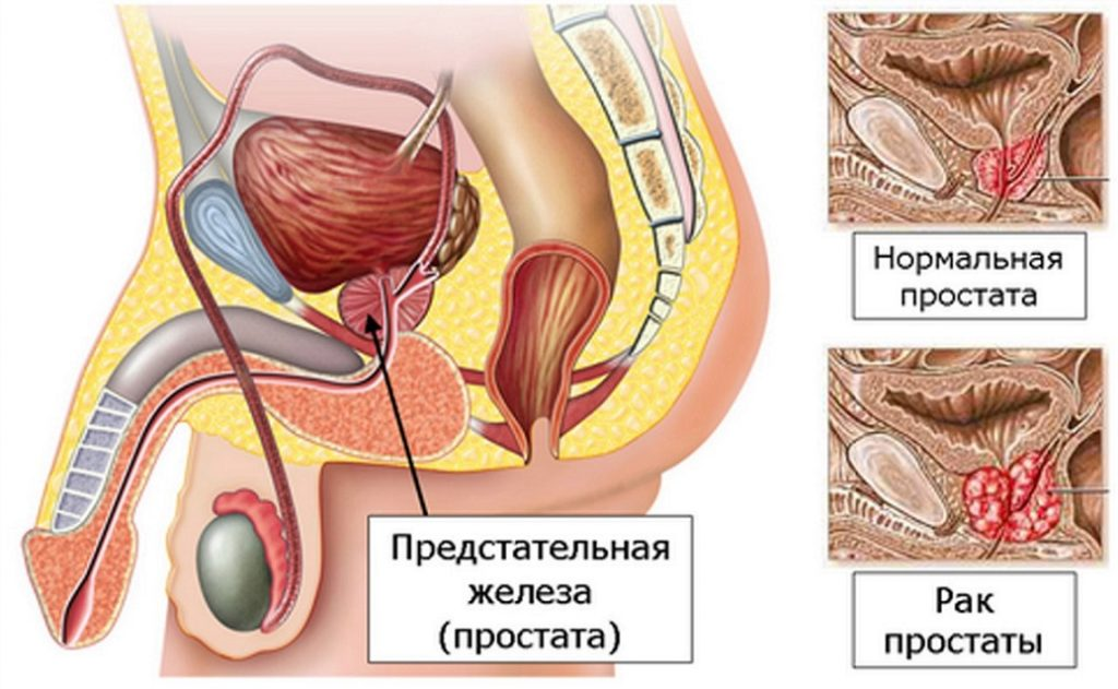 Причины болей в области крестца у мужчин и женщин
