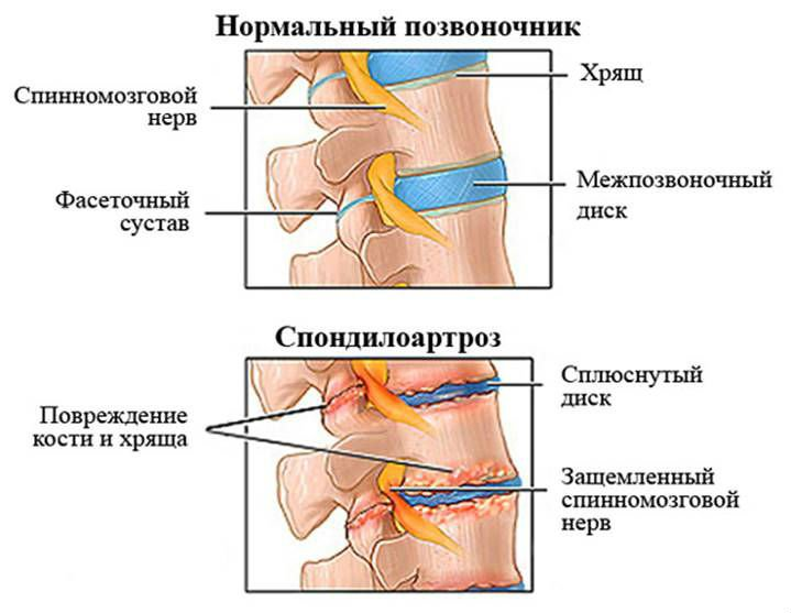Причины дегенеративно-дистрофических изменений в крестцовом отделе позвоночника и методы их устранения