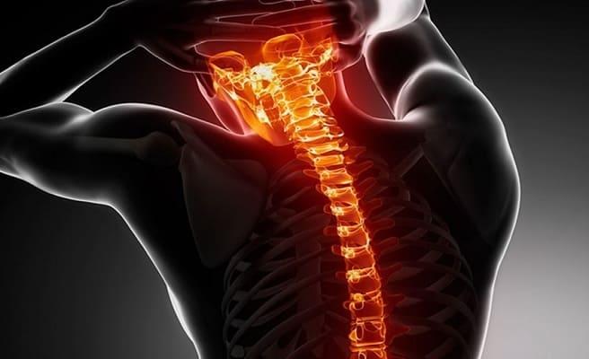 Причины и симптомы остеохондроза с корешковым синдромом