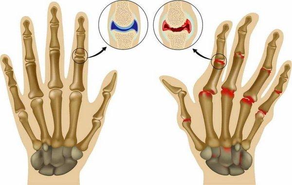 Причины и симптомы возникновения артрита пальцев рук