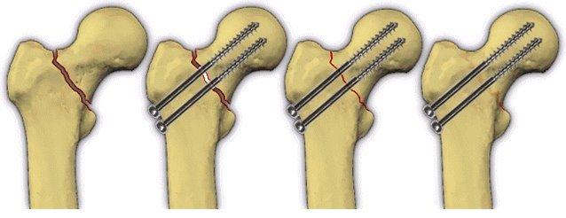 Причины и варианты лечения болей в тазобедренном суставе