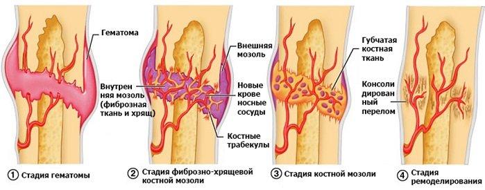 Причины образования костной мозоли и методы ее лечения