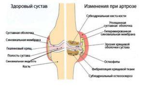 Бывает ли температура при артрите