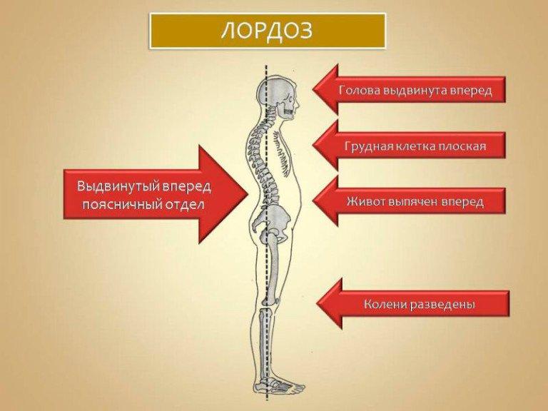 Причины появления хруста в позвоночнике при движении спиной