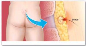 Причины появления шишки на копчике и меры лечения