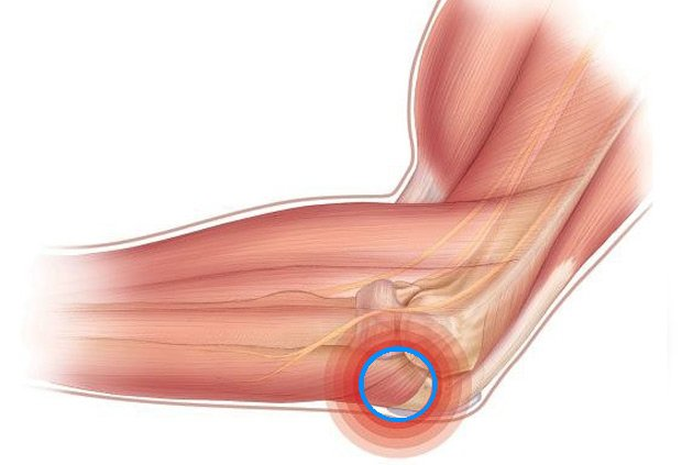 Причины появления такого симптома, как хруст в локтевом суставе