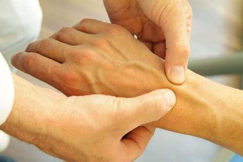 Причины развития артроза лучезапястного сустава, методы лечения