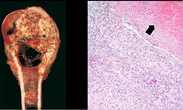 Причины развития остеомы лобной и методы лечения