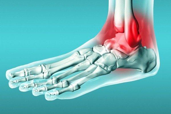 Причины возникновения боли в ногах от колена до ступни