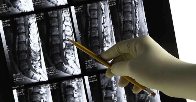Грыжа шморля грудного отдела позвоночника лечение