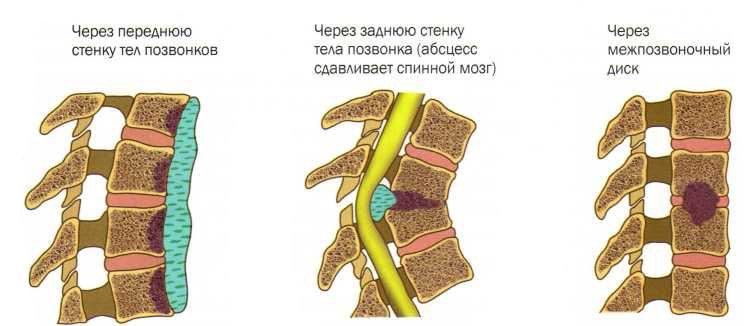 Причины возникновения туберкулезного спондилита и методы лечения