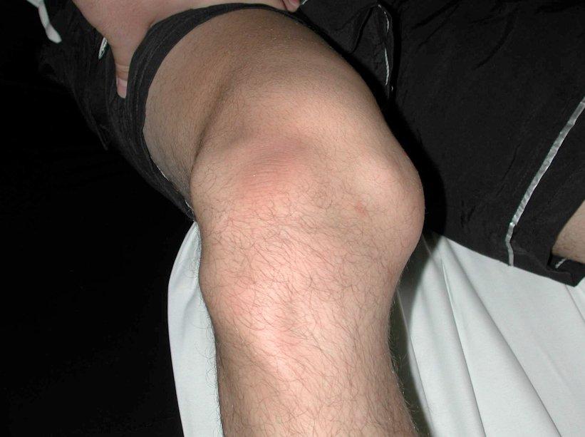 Причины вывиха коленного сустава и первая помощь