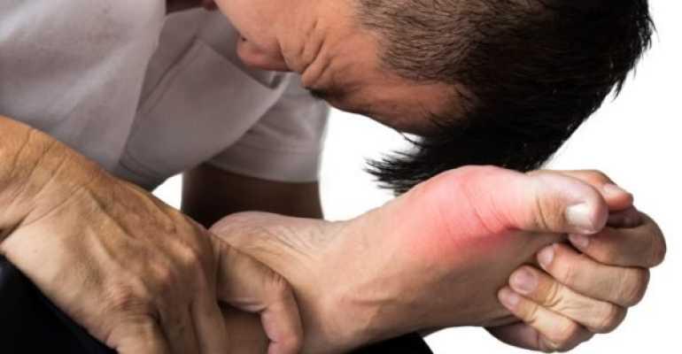 Обострение подагры лечение у мужчин