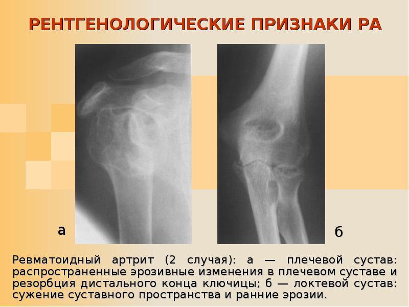 Признаки и стадии ревматоидного артрита на рентгене и МРТ