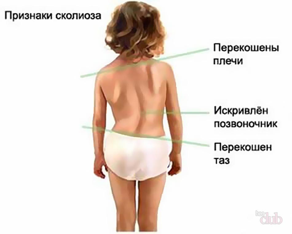 Профилактика и лечение нарушений осанки у детей дошкольного возраста