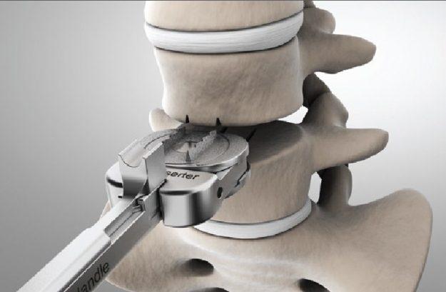 Реабилитация после хирургического вмешательства по удалению межпозвоночной грыжи позвоночника в поясничном отделе