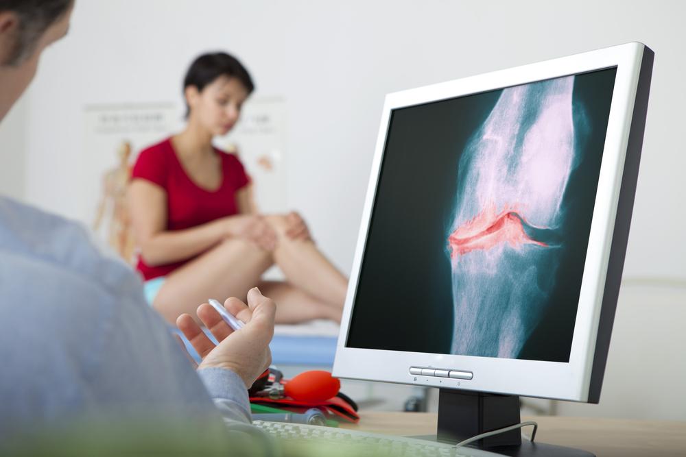 Самые эффективные методы лечения артроза